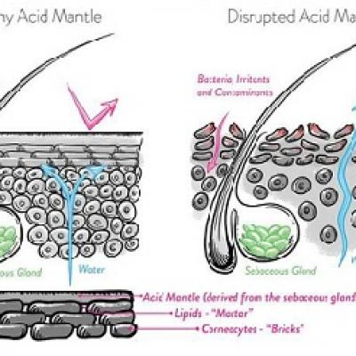 Hệ vi khuẩn và lớp màng acid bảo vệ da như thế nào