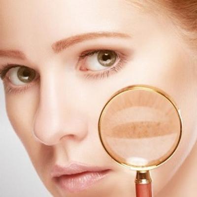 Loại bỏ sắc tố da - ngăn ngừa nám da với những mẹo sau